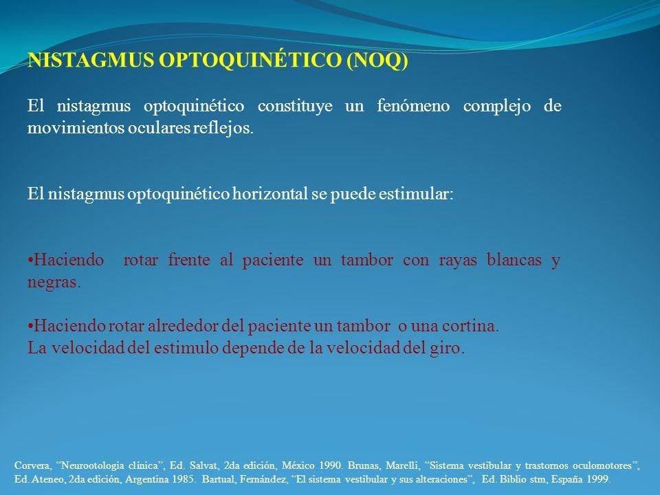 NISTAGMUS OPTOQUINÉTICO (NOQ)