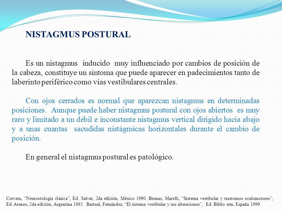 NISTAGMUS POSTURAL