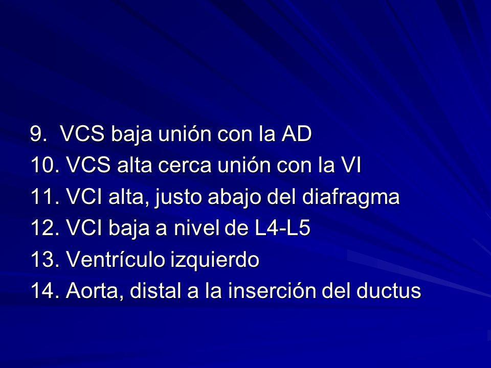 9. VCS baja unión con la AD 10. VCS alta cerca unión con la VI. 11. VCI alta, justo abajo del diafragma.