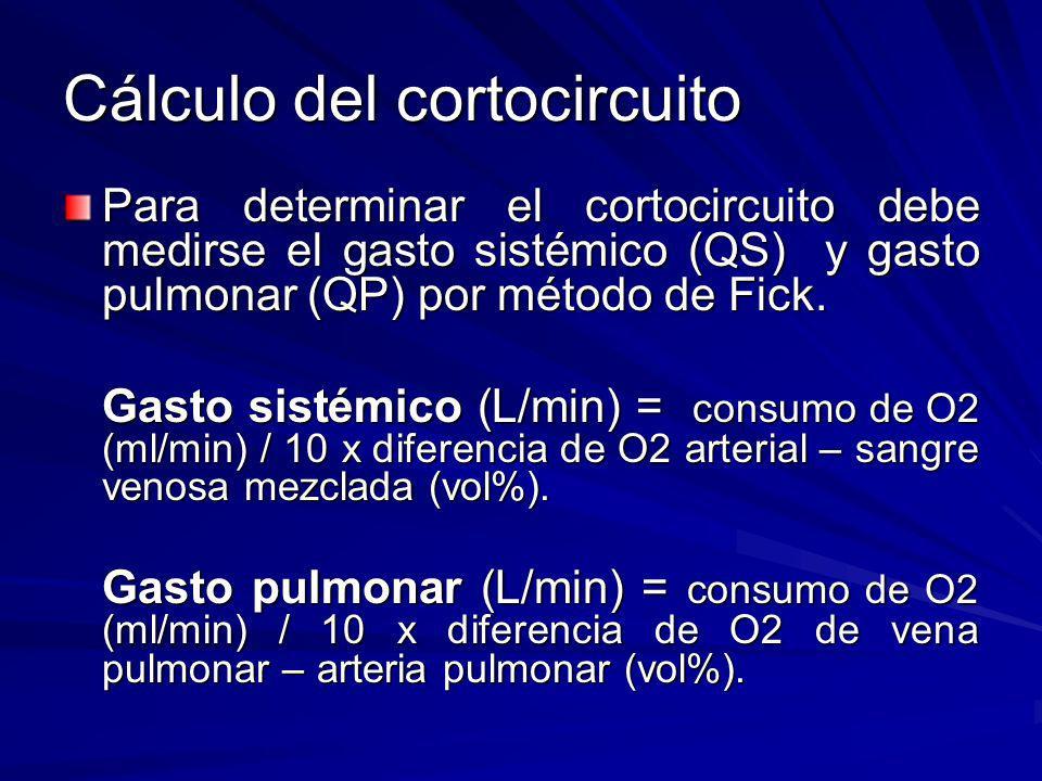 Cálculo del cortocircuito