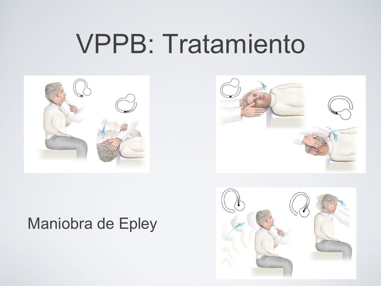 VPPB: Tratamiento Maniobra de Epley