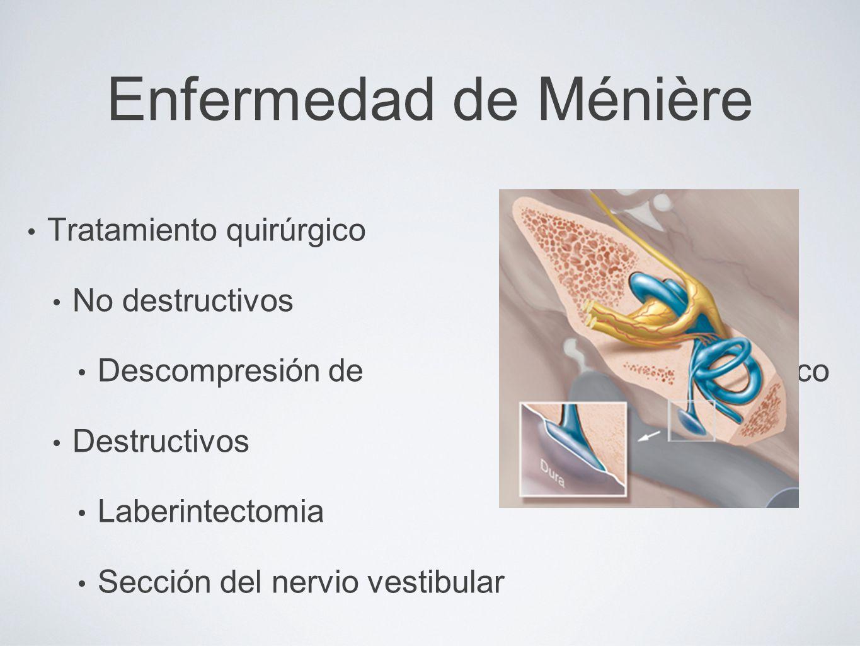 Enfermedad de Ménière Tratamiento quirúrgico No destructivos