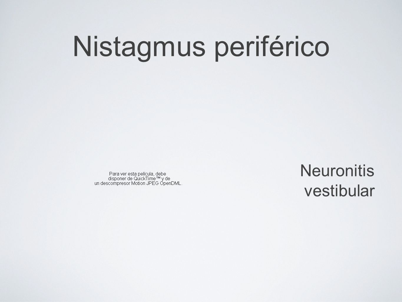 Nistagmus periférico Neuronitis vestibular