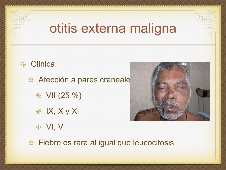 otitis externa maligna