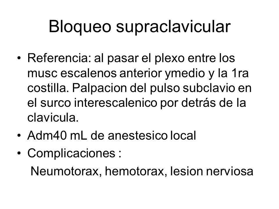 Bloqueo supraclavicular