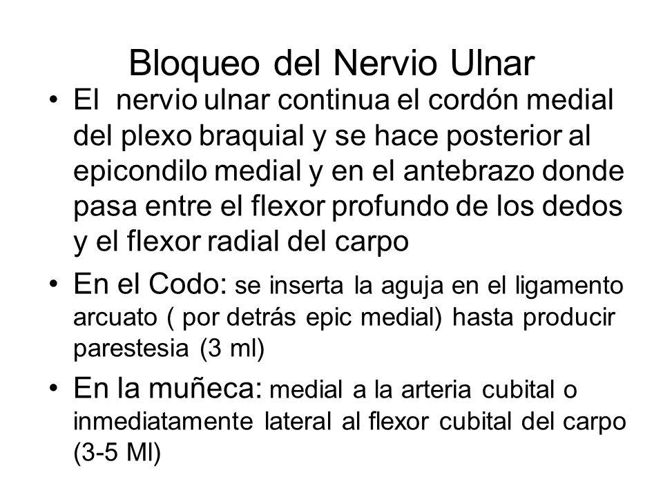 Bloqueo del Nervio Ulnar