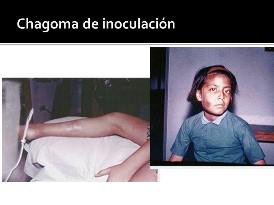 Chagoma de inoculación