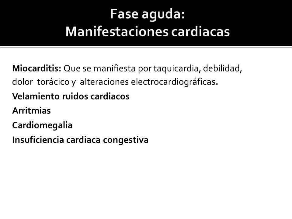 Fase aguda: Manifestaciones cardiacas