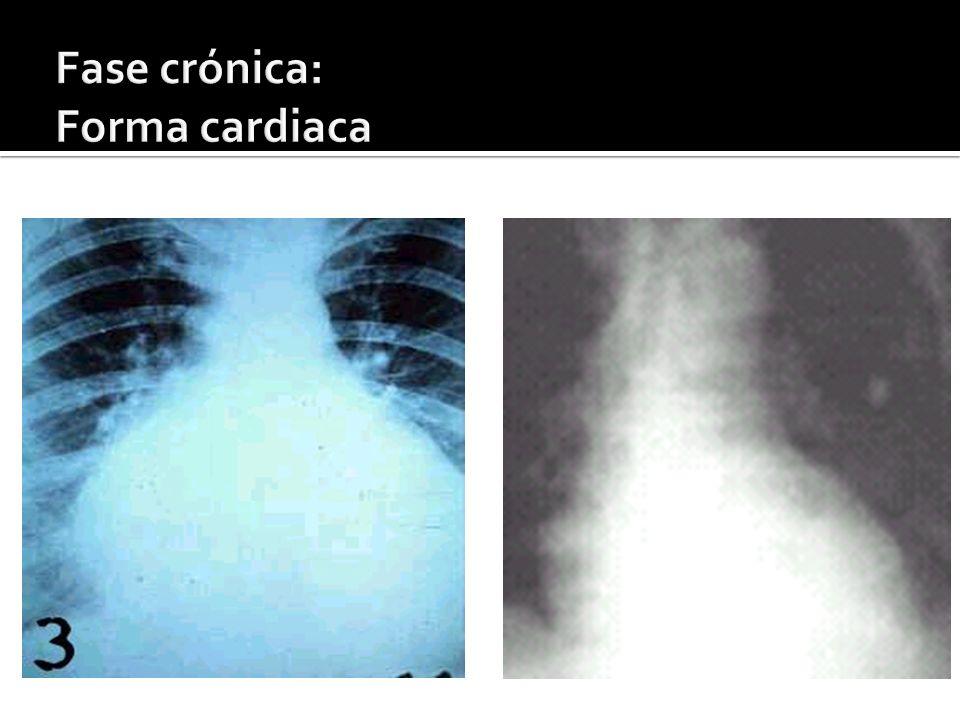 Fase crónica: Forma cardiaca