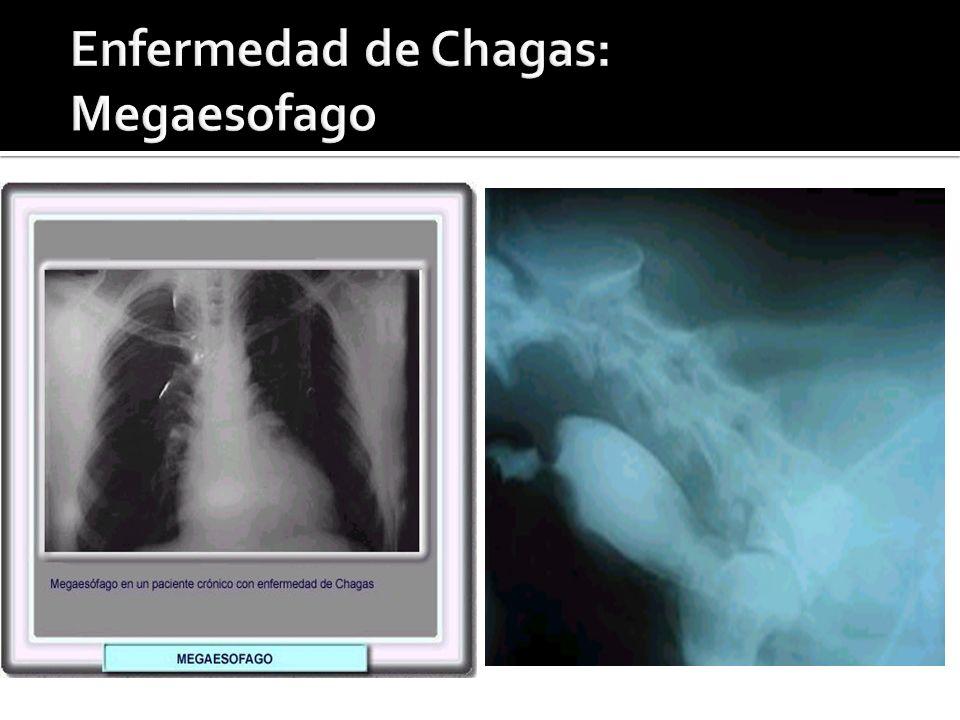 Enfermedad de Chagas: Megaesofago