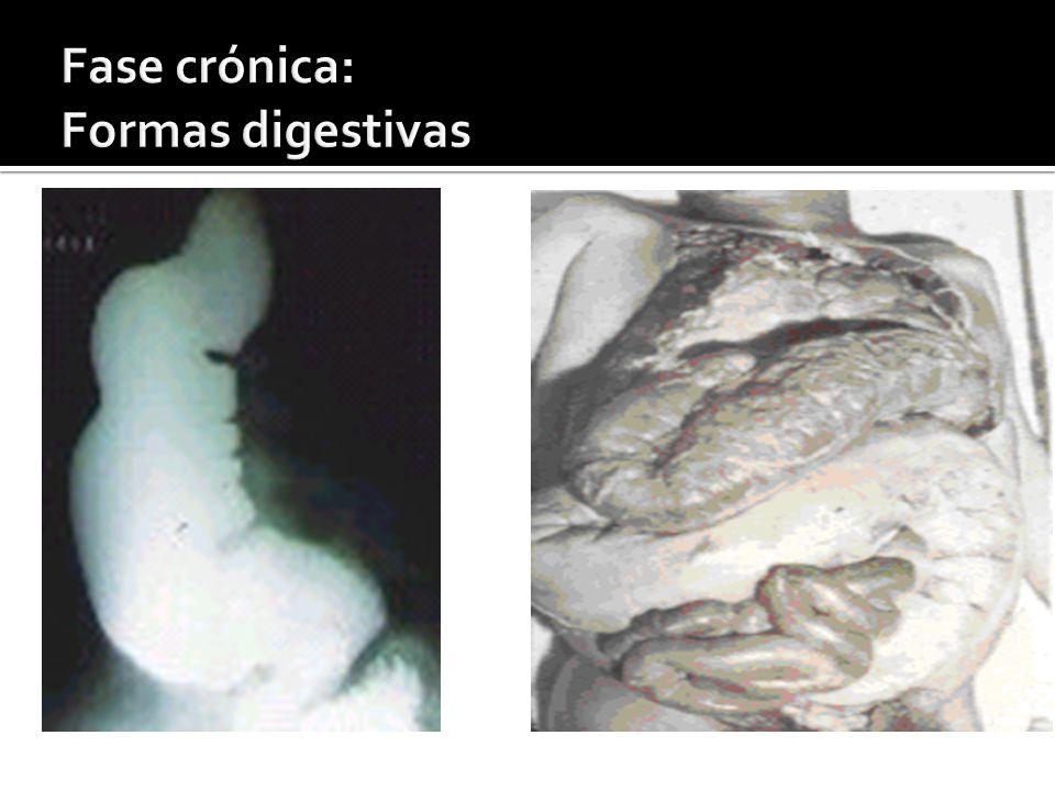 Fase crónica: Formas digestivas