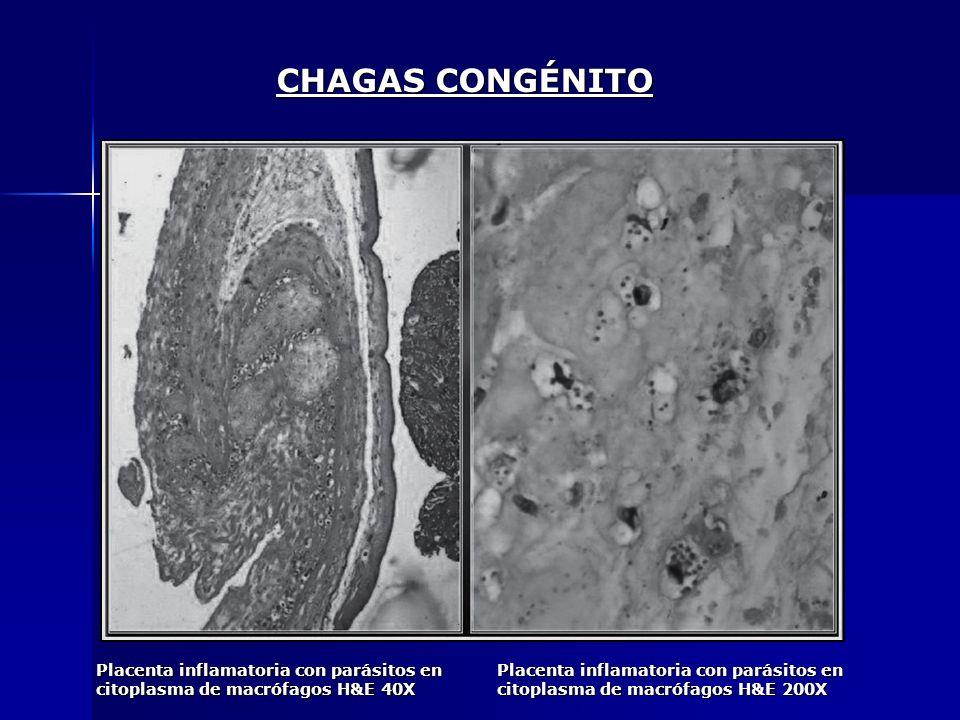 CHAGAS CONGÉNITOPlacenta inflamatoria con parásitos en citoplasma de macrófagos H&E 40X.