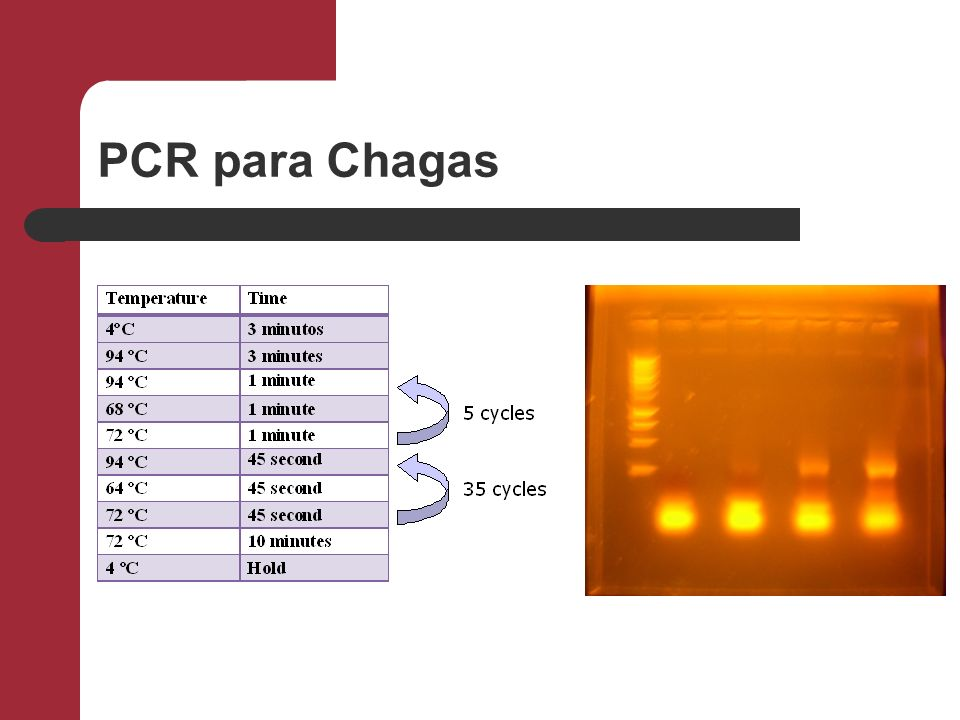 PCR para Chagas
