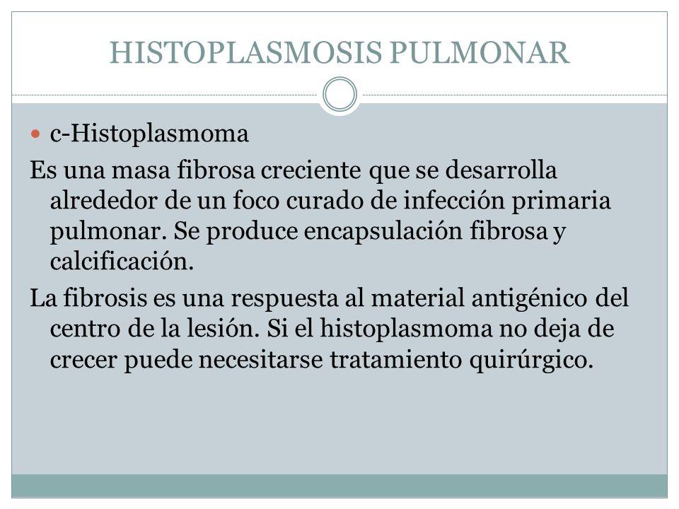 HISTOPLASMOSIS PULMONAR