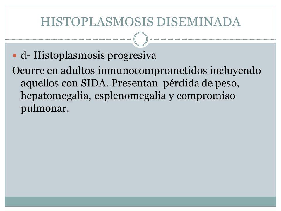 HISTOPLASMOSIS DISEMINADA