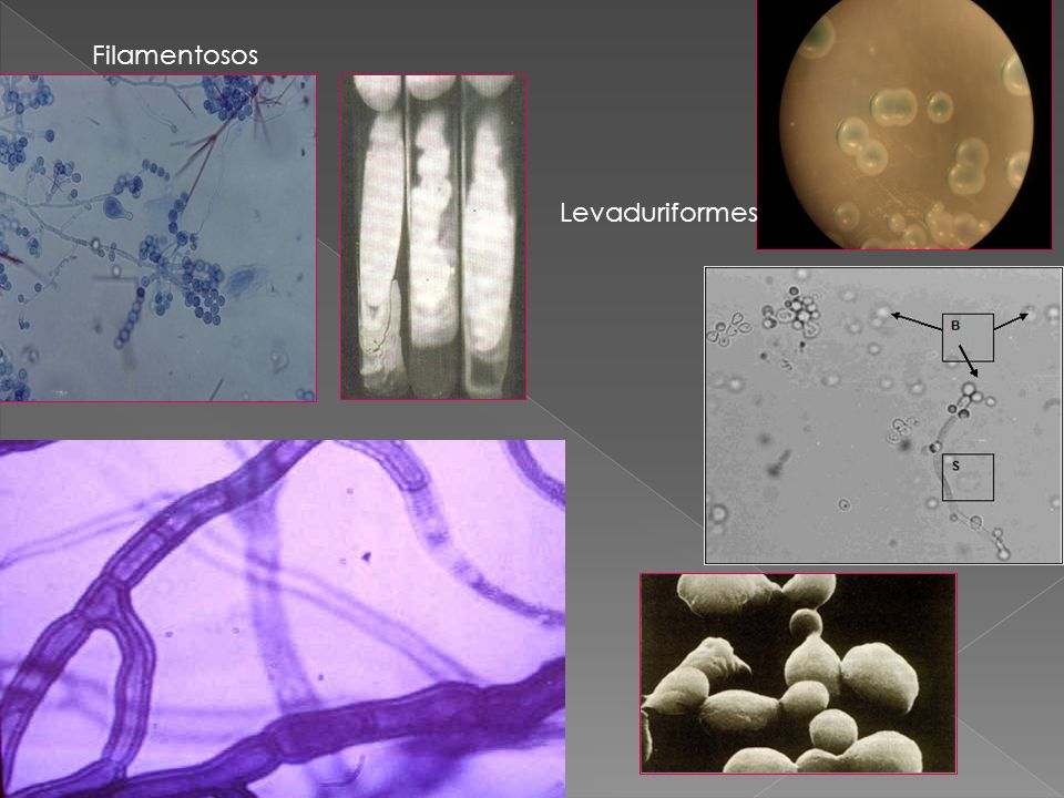 Filamentosos Levaduriformes