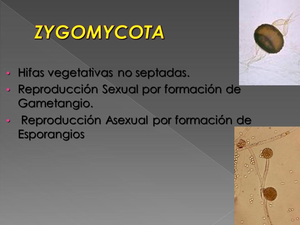 ZYGOMYCOTA Hifas vegetativas no septadas.
