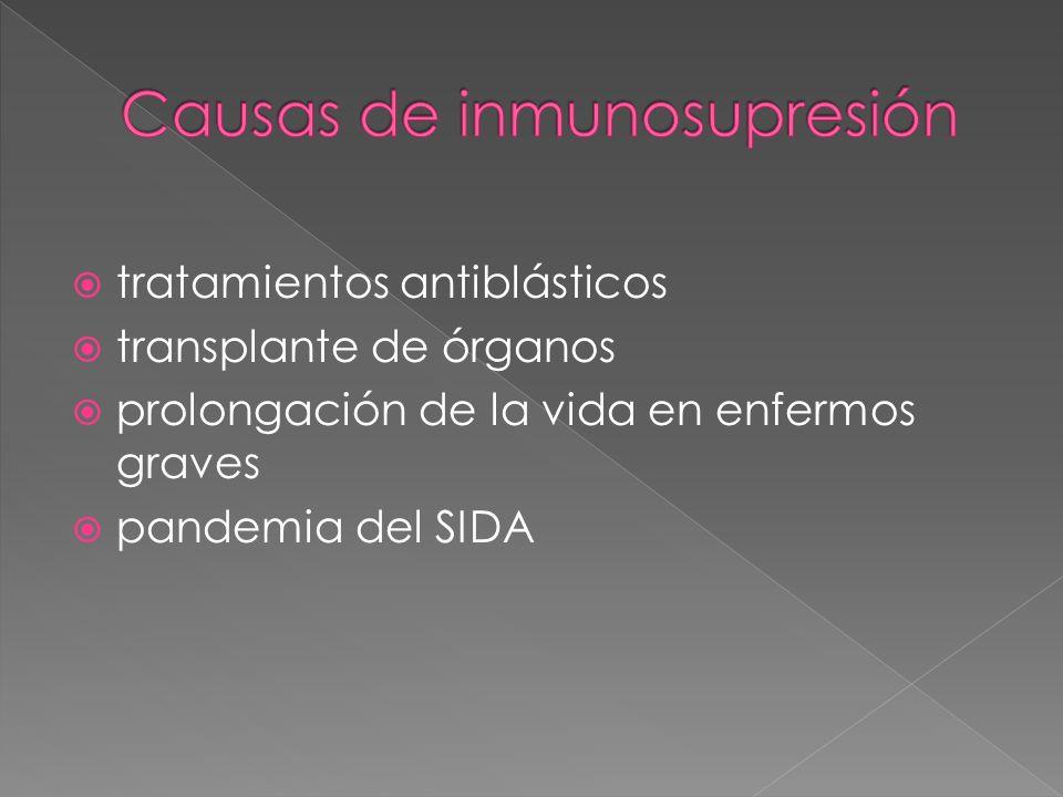 Causas de inmunosupresión