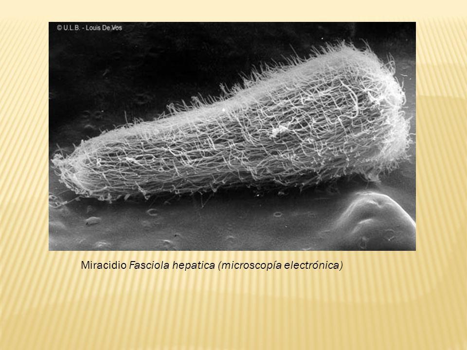 Miracidio Fasciola hepatica (microscopía electrónica)