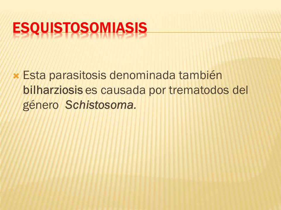 Esquistosomiasis Esta parasitosis denominada también bilharziosis es causada por trematodos del género Schistosoma.