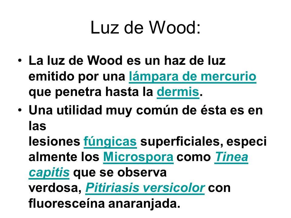 Luz de Wood:La luz de Wood es un haz de luz emitido por una lámpara de mercurio que penetra hasta la dermis.