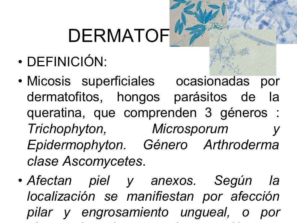 DERMATOFITOSIS DEFINICIÓN: