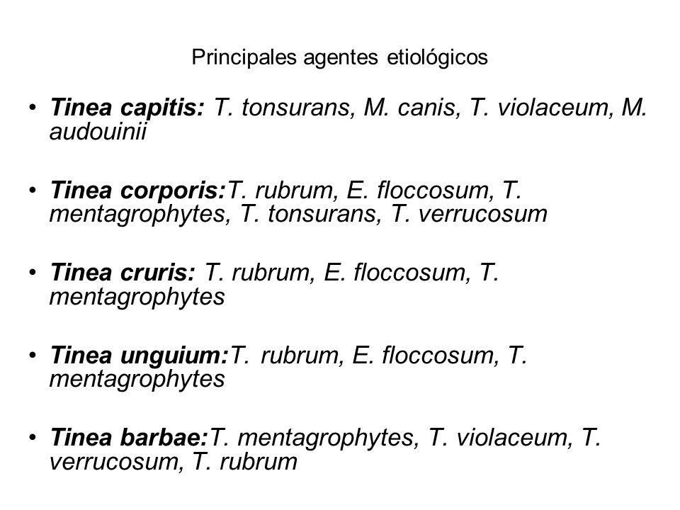 Principales agentes etiológicos