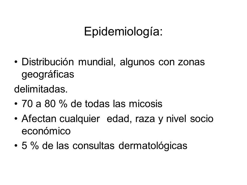 Epidemiología: Distribución mundial, algunos con zonas geográficas