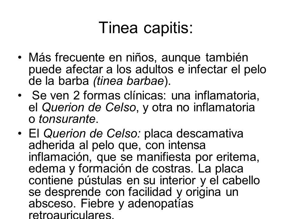 Tinea capitis:Más frecuente en niños, aunque también puede afectar a los adultos e infectar el pelo de la barba (tinea barbae).