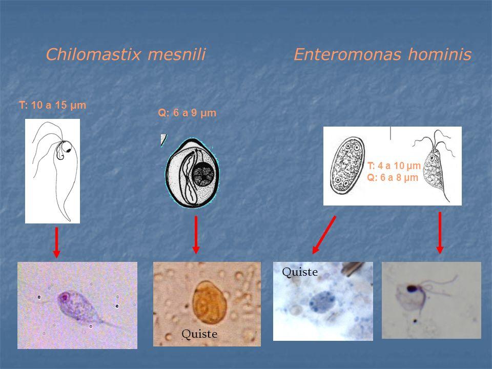 Chilomastix mesnili Enteromonas hominis Quiste Quiste T: 10 a 15 μm