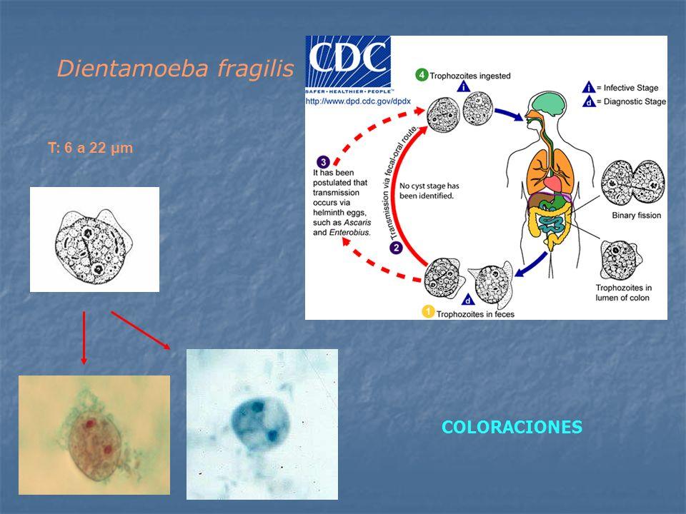 Dientamoeba fragilis T: 6 a 22 μm COLORACIONES