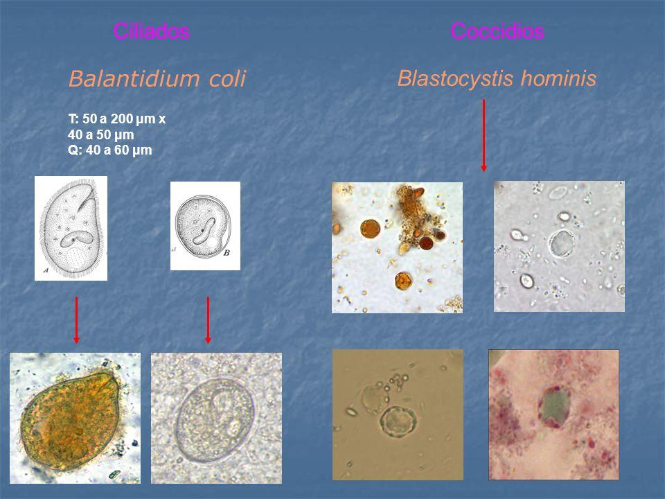 Ciliados Coccidios Balantidium coli Blastocystis hominis