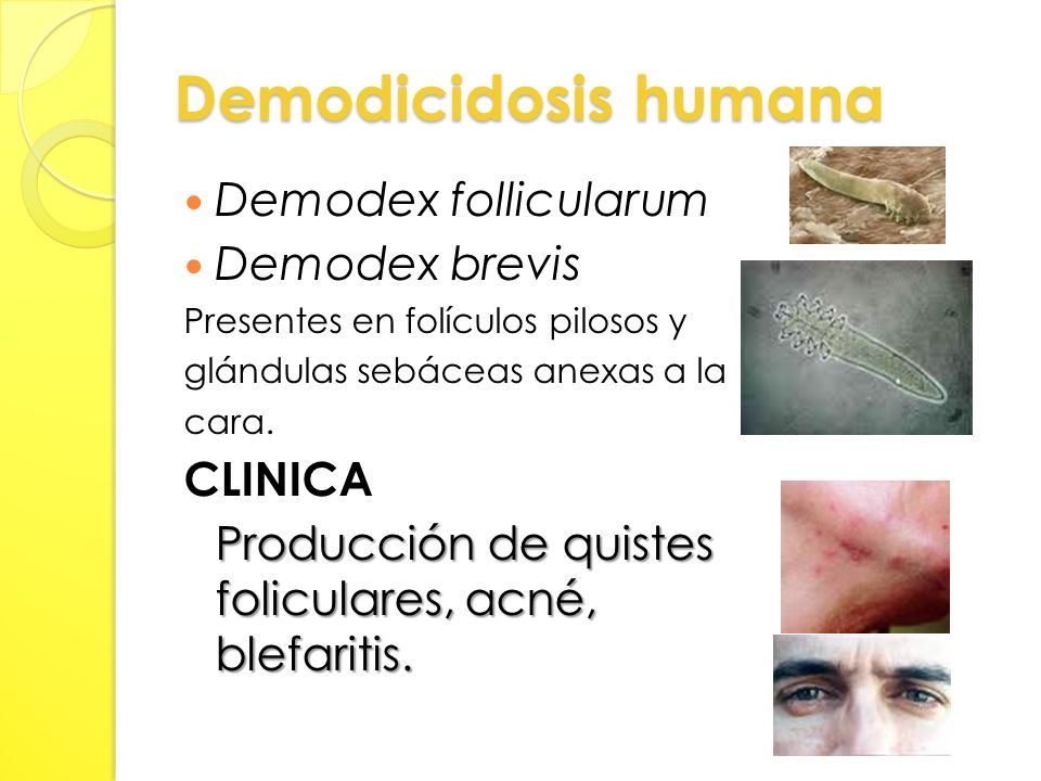 Demodicidosis humana Demodex follicularum Demodex brevis CLINICA