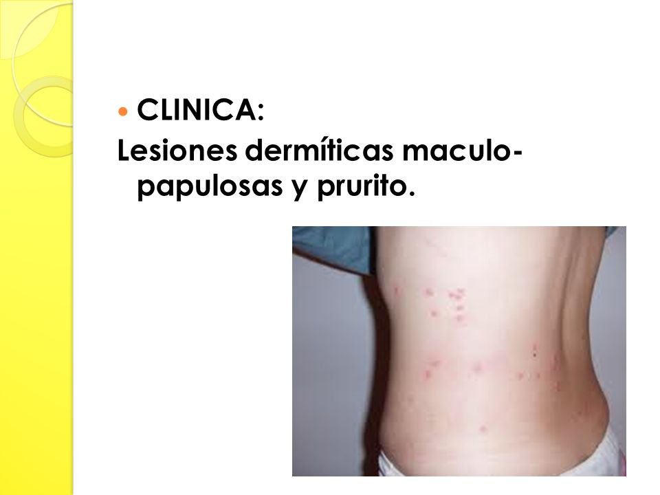CLINICA: Lesiones dermíticas maculo- papulosas y prurito.