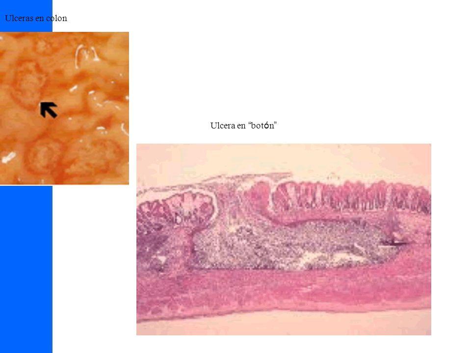 Ulceras en colon Ulcera en botón