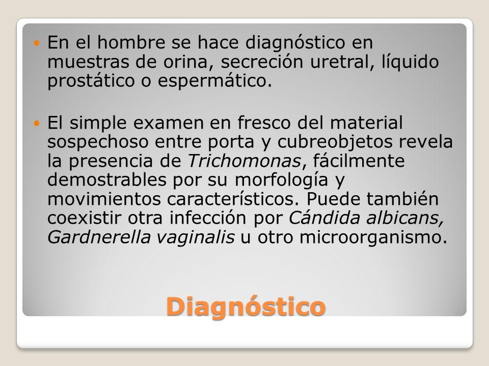 En el hombre se hace diagnóstico en muestras de orina, secreción uretral, líquido prostático o espermático.