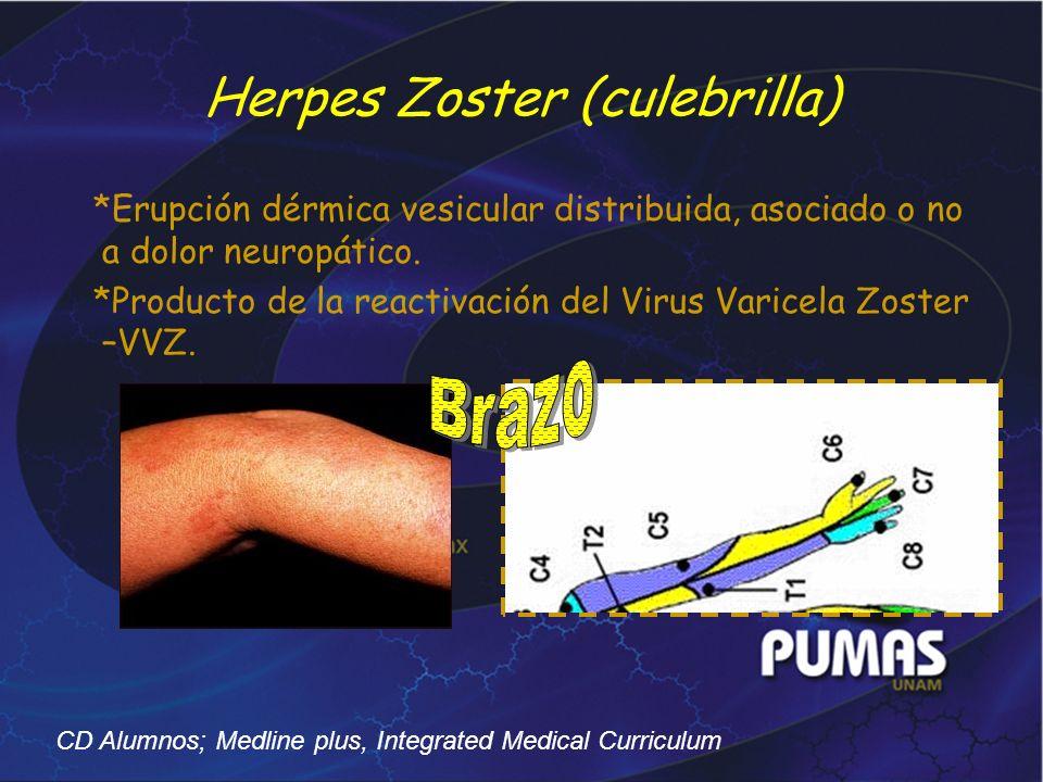 Herpes Zoster (culebrilla)