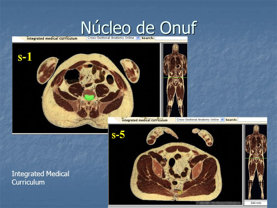 Núcleo de Onuf Integrated Medical Curriculum