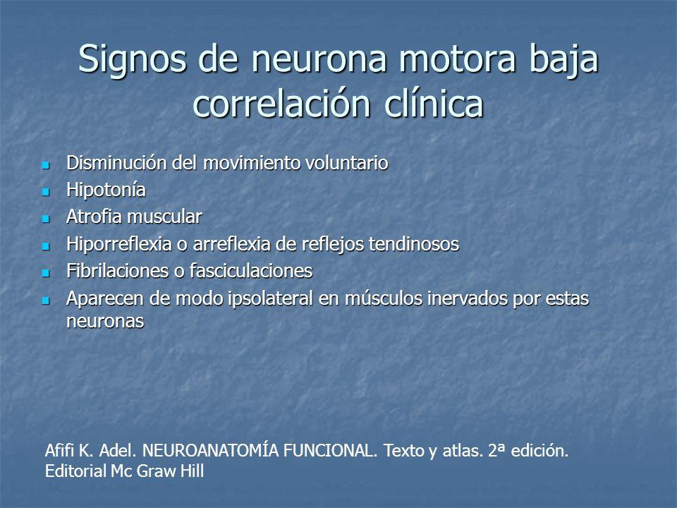 Signos de neurona motora baja correlación clínica