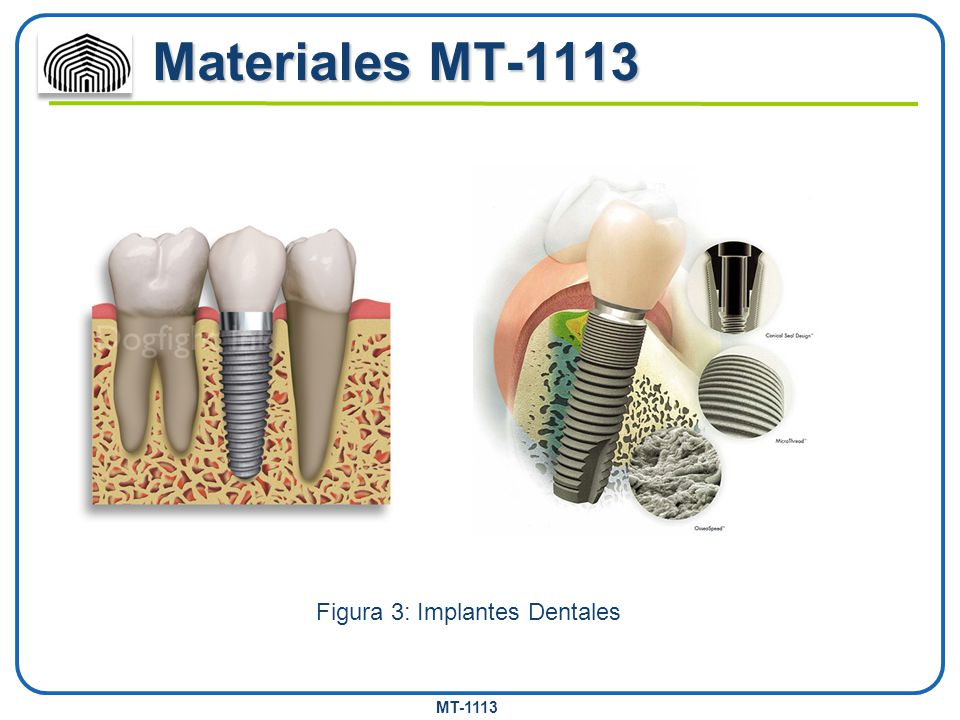 Figura 3: Implantes Dentales