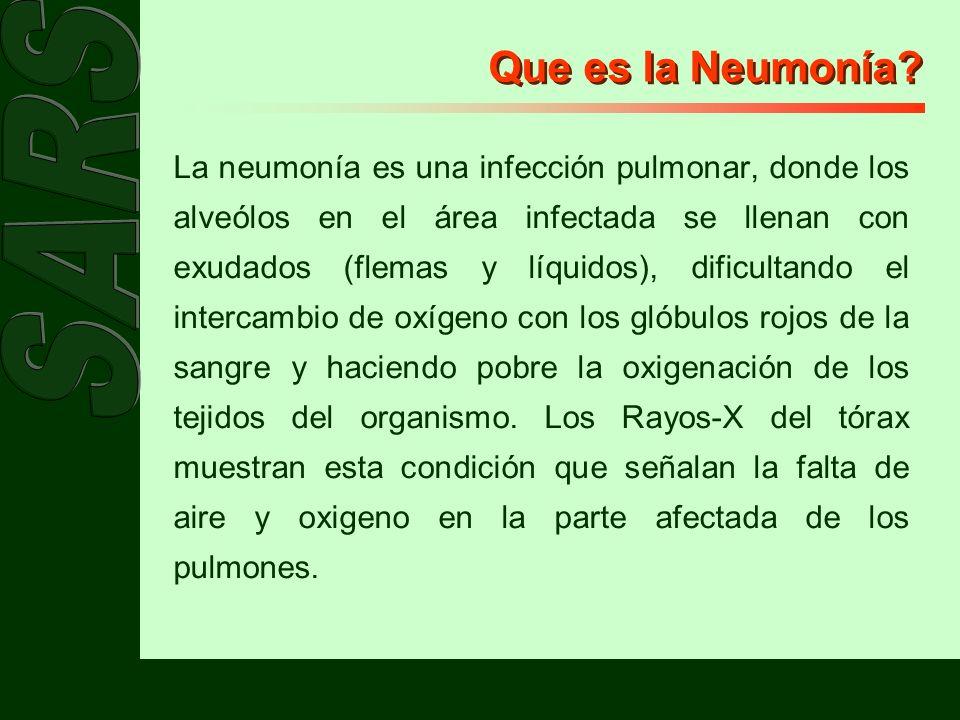 Que es la Neumonía