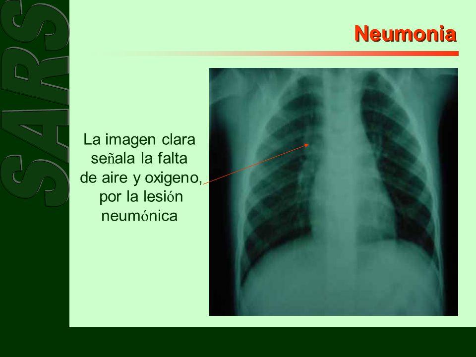 por la lesión neumónica
