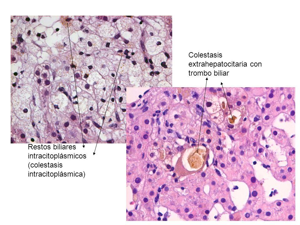Colestasis extrahepatocitaria con trombo biliar