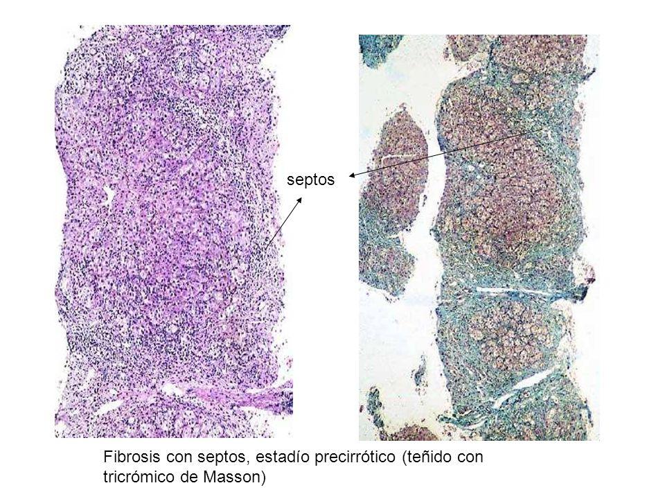 septos Fibrosis con septos, estadío precirrótico (teñido con tricrómico de Masson)