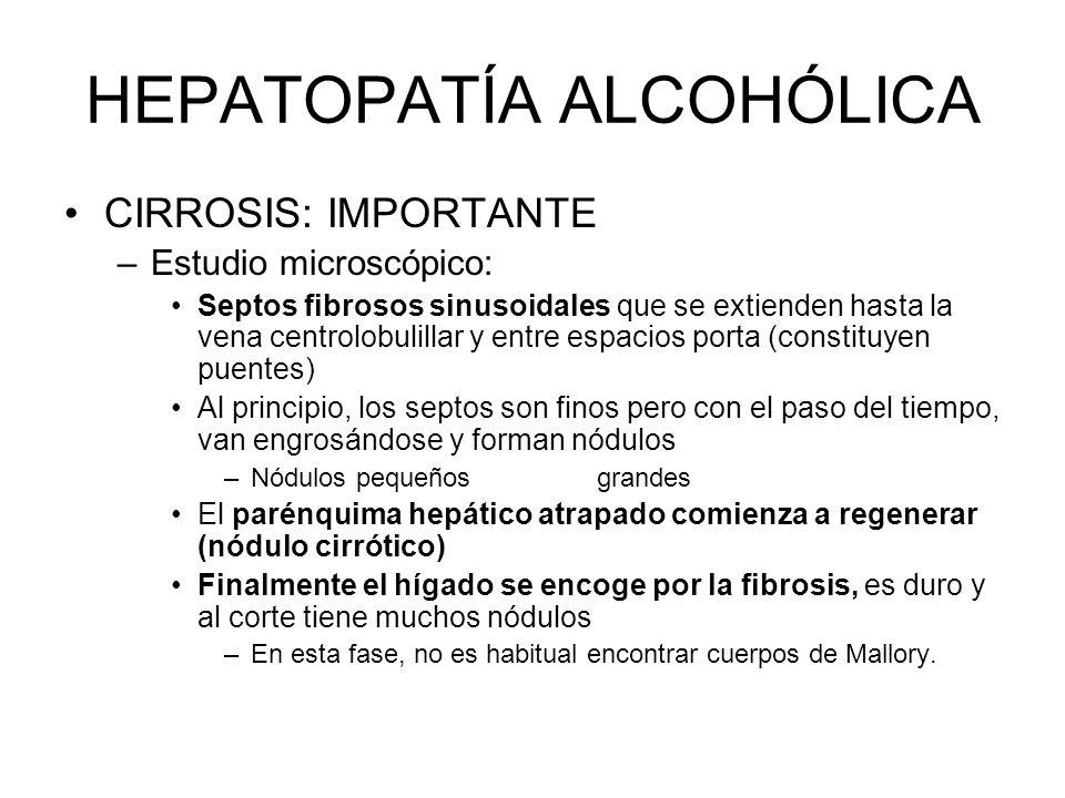 HEPATOPATÍA ALCOHÓLICA