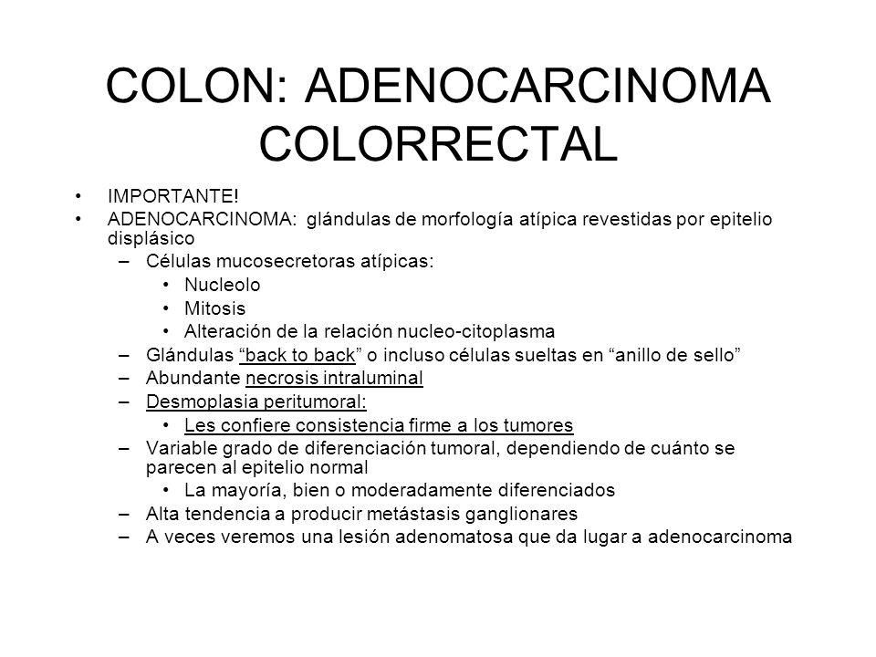 COLON: ADENOCARCINOMA COLORRECTAL