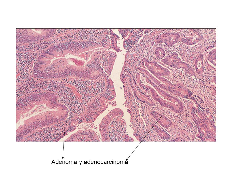 Adenoma y adenocarcinoma