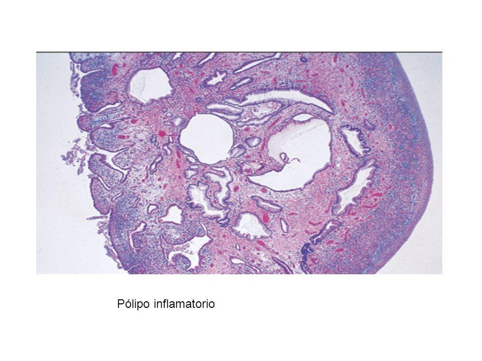 Pólipo inflamatorio