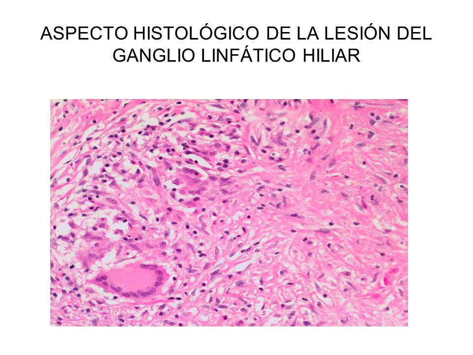ASPECTO HISTOLÓGICO DE LA LESIÓN DEL GANGLIO LINFÁTICO HILIAR