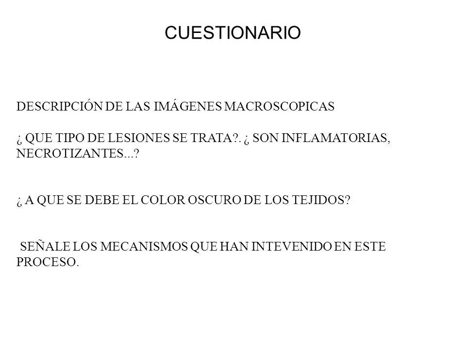 CUESTIONARIO DESCRIPCIÓN DE LAS IMÁGENES MACROSCOPICAS